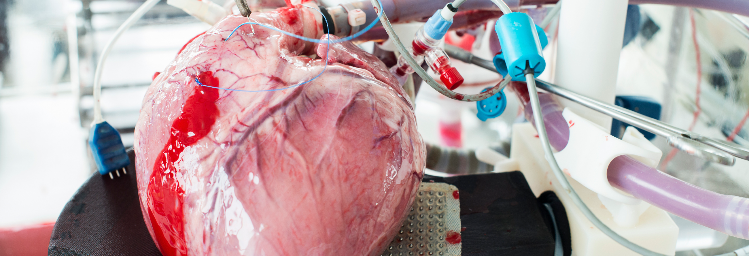 "Paper: ""Investigating the physiology of normothermic ex vivo heart perfusion in an isolated slaughterhouse porcine model used for device testing and training"""
