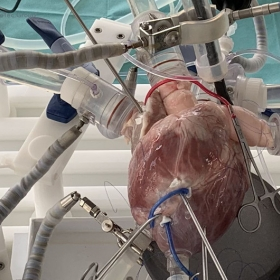 Cardiac BioSimulator platform: 4-chamber circulation mode