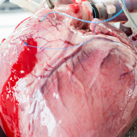 """News   Paper: """"Investigating the physiology of normothermic ex vivo heart perfusion in an isolated slaughterhouse porcine model used for device testing and training"""""""