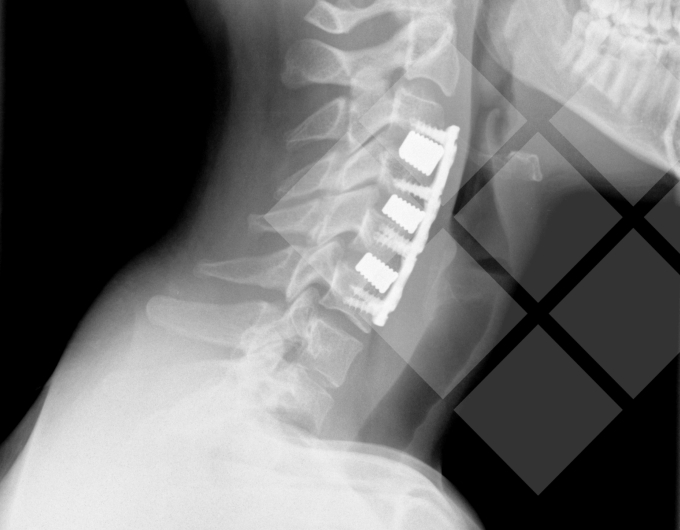 LifeTec Group Acceleration: Meliora Medical - Getting rid of a pain in the neck