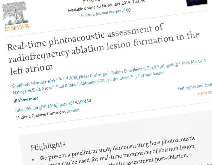 """""""Real-time photoacoustic assessment of radiofrequency ablation lesion formation in the left atrium"""""""