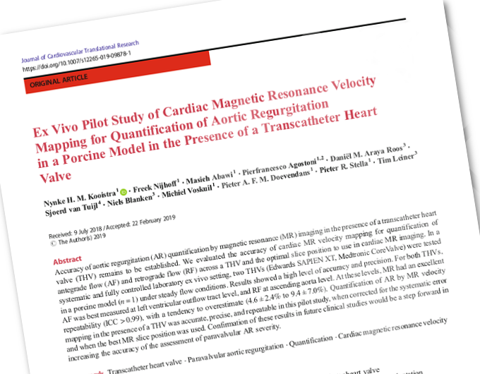 "Paper: ""Ex Vivo Pilot Study of Cardiac Magnetic Resonance Velocity Mapping for Quantification of Aortic Regurgitation..."""