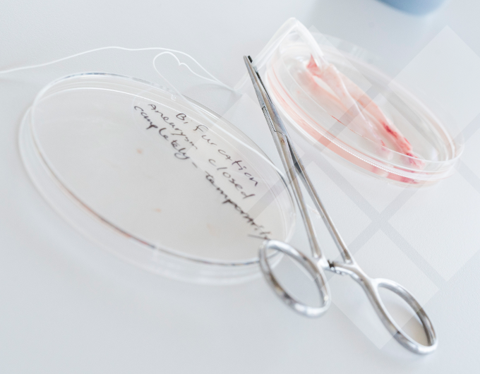 LifeTec Group - Blood Vessels in a box (alternative to animal testing)
