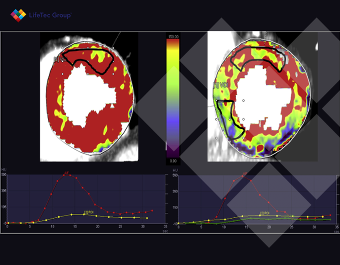 Intermodel disagreement of myocardial blood flow estimation from dynamic T CT perfusion imaging