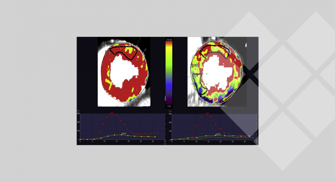Fig. 2 On the left the midventricular slice of a patient without ischemia, where the AIF (red) and the TAC (yellow) are presented. On the right, the midventricular slice of a patient with confirmed ischemia according to the SPECT acquisition in the mid-septal and mid-inferior segments. From this patient, the AIF curve is represented (red) along with two TAC, one from the non-ischemic mid-lateral regions (yellow) and one from the ischemic region (green). The ischemic TAC is clearly lower
