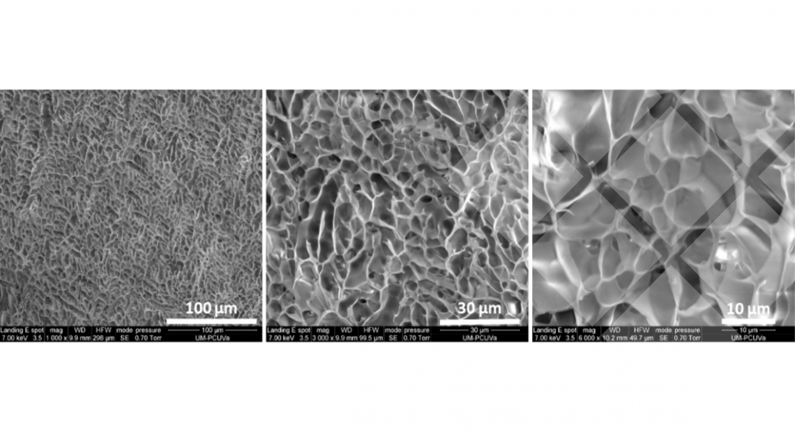 Figure 9. Representative SEM pictures for pA(EIS)2-(I5R)6 hydrogel at 120 mg/mL at different magnifications.