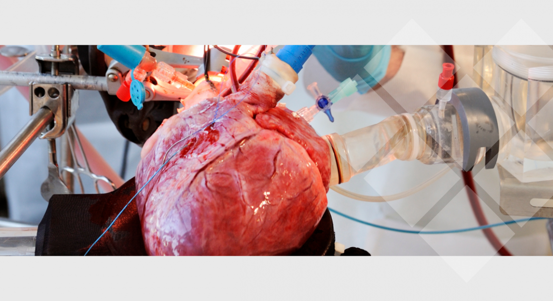 """""""We wanted reliable results, so we needed a test environment as close to reality as possible. That's how we got to PhysioHeart™, the beating heart platform offered by LifeTec Group...."""""""